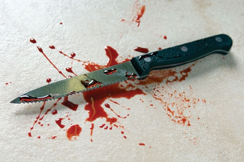 1311149958 blood_stainedknife